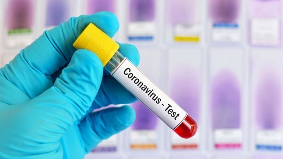 Record-breaking 83 Covid-19 deaths in 24 hours; 7201 infected